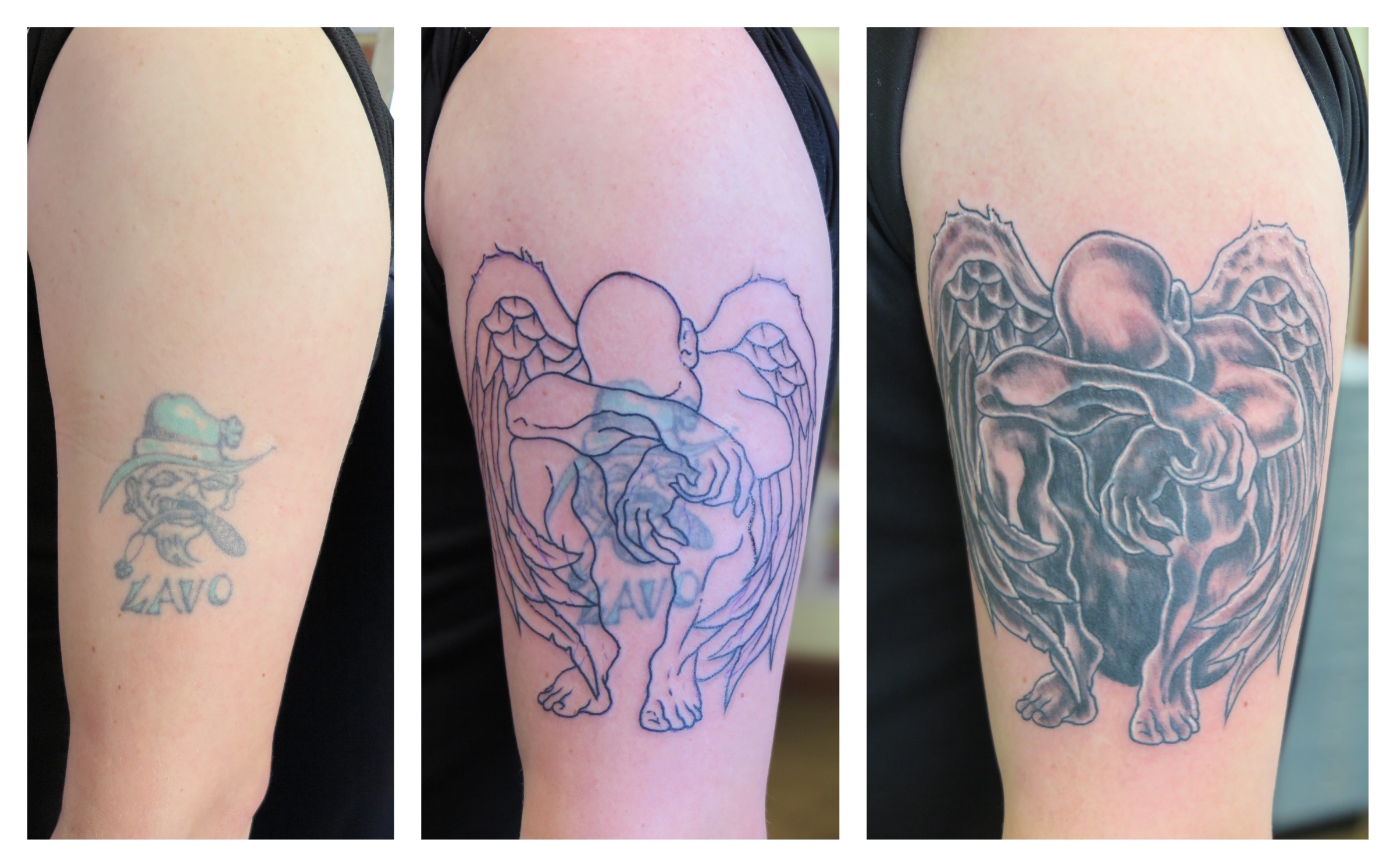 28 Tattoo Removal Belfast 10 Laser Removal Northern